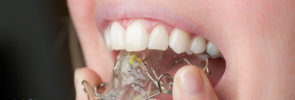 4 Important Care Tips for After Your Braces Come Off